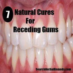 Search Herbal Remedy - http://www.searchherbalremedy.com/natural-cures-for-receding-gums/
