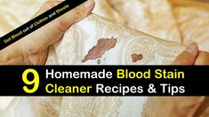 9 Homemade Blood Stain Cleaner Recipes and Tips - How to Get Blood out of Clothes and Sheets Simple Life Hacks, Useful Life Hacks, Diy Cleaning Products, Cleaning Hacks, Blood Out Of Clothes, Get Blood Stains Out, How To Clean Suede, Old Blood, Dawn Dish Soap