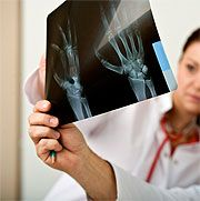 Clinical Breakthroughs in Natural Arthritis Relief