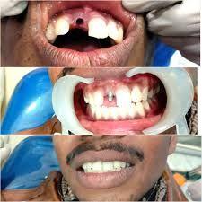 Best Pediatric Orthodontist Near Me Dental Braces Orthodontist Braces Dentist