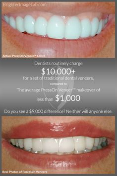 70 Best Vaneers Images On Pinterest Dental Health Veneers Teeth