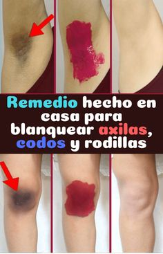 Remedio natural hecho en casa para blanquear axilas, codos y rodillas – 10 Ideas Beauty Care, Beauty Skin, Hair Beauty, Beauty Hacks For Teens, Hair Thickening, Skin Tag, Healthy Beauty, Tips Belleza, Beauty Recipe