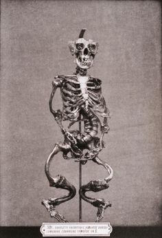Deformed Skeleton Due to Rickets, Catalogue des pièces du Musée Dupuytren, 1879
