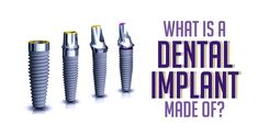 A dental implant which replaces the root of a missing tooth is typically made of titanium. This material provides a strong and sturdy foundation for one or more missing teeth. Implant Dentist, Dental Implant Surgery, Teeth Implants, Dental Hygiene, Dental Health, Dental Care, Emergency Dental Treatment, Tooth Replacement, Radiation Therapy