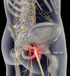 Want to cure that sciatica pain for good? Here's the top 5 remedies you definitely should consider...
