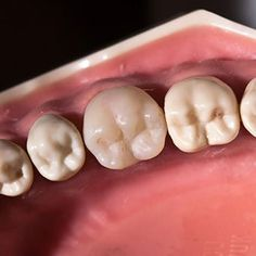 Root canal treatment is necessary once your tooth becomes infected inside; Our experienced and qualified dentist offers root canal treatment in Tomball, Houston, TX. Best Dentist, Dentist In, Root Canal Dentist, Tooth Nerve, Root Canal Treatment, Dental Procedures, Dental Services, Dental Care, Surgery