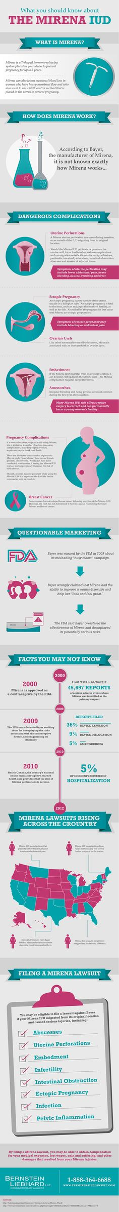 What You Should Know About The Mirena IUD - A number of lawsuits have been filed by women who allege Bayer downplayed the seriousness of possible Mirena side effects.