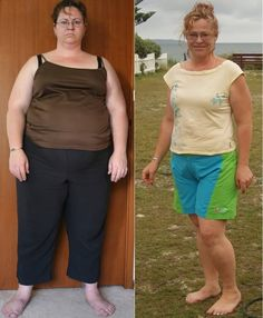 Women Weight Loss Before and After | Before and After Weight Loss
