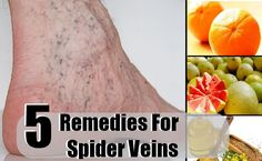 Spider veins are tiny swollen blood vessels which are easily discernable through the skin. They appear like a web of thin and twisted purple or red, jagged