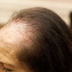View before and after images of our clients representing many causes of hair loss, as well as quotes from some of the wonderful women we work with. Eyebrow Hair Loss, Cat Hair Loss, Hair Loss Specialist, Anti Hair Loss Shampoo, Best Hair Loss Treatment, Sensitive Scalp, Hair Loss Women, After Workout, Prevent Hair Loss
