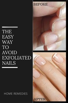 Home Tips To Avoid Exfoliated Nails  Lack of vitamin A