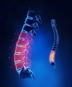 Lumbar spinal stenosis causes low back and leg pain. Both back and leg pain often worsens with activity, such as walking. Degenerative disc disease and spondylolisthesis are two different spinal disorders that can cause or contribute to spinal