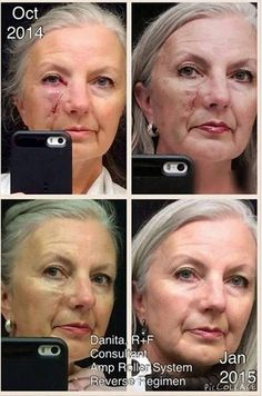 """Author, and now R+F consultant Danita Clark: """"This past October, I had surgery for skin cancer. As soon as my stitches were removed, I began applying Rodan + Fields Night Renewing Serum and Overnight Restorative Cream nightly. A month later, I began using our Amp MD Roller a couple times a week.... You might also notice the greatly diminished brown spot beside my eye. That is because I'm also using the Reverse regimen. I don't wear any type of foundation or powder on my face..."""""""