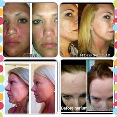 Nerium AD addresses many skin issues. You've got to try it for yourself to see! No-risk trial! #FollowLauraLives #antiaging #agedefying