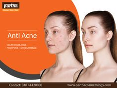 """Its Time to Say No To """"ACNE"""". #BestAcneTreatment #NaturalTreatmentForAcne #ParthaCosmetology #SkinCare Skin And Hair Clinic, Best Acne Treatment, Dental, Skincare, Skincare Routine, Skins Uk, Skin Care, Teeth, Asian Skincare"""