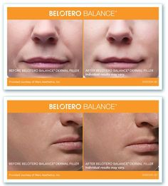 Belotero Dermal #FillerTreatment at Jupiter, Florida .. For more info....// http://skyedermatology.com/belotero