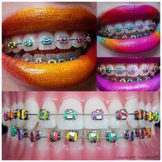 Colourful braces colours - BraceMate designs for Braces - nails - Braces Braces Food, Braces Tips, Dental Braces, Teeth Braces, Dental Care, Rainbow Braces, Braces Retainer, Gold Braces, Cute Braces Colors