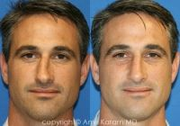 Amir Karam MD - Nose Surgery Before and After Photos 11943 El Camino Real, # San Diego, California 92130 Honey Face Cleanser, Rhinoplasty Before And After, Camino Real, Nose Surgery, Before After Photo, La Jolla, Plastic Surgery, San Diego, Facial