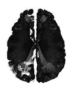 Inkblot Brain Art Print