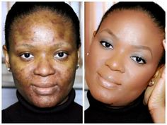 WATCH HOW TO COVER ACNE USING MAKEUP [VIDEO