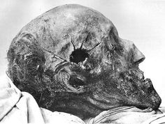 """The cranium of the Swedish king Charles XII from an autopsy in 1916, also known as Carolus Rex, who died from a sustained headshot in 1718."""
