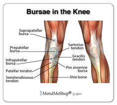 What is the most effective way to treat knee bursitis is there a distribution of the bursae lubricating pockets around the knee these are normal structures but when there is inflammation in a bursa it fills with fluid ccuart Image collections