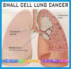 http://cancer.tipstimes.com/lung-cancer/item/212-small-cell-lung-cancer There are two types of lung cancer; small cell lung cancer (SCLC) and non-small cell lung cancer (NSCLC). SCLC believed that about 20% of all lung cancer diagnosis. This type of cancer develops when the small cells of the lungs begin to grow at a rapid and uncontrolled way. In the end, leads to the formation of malignant (cancer) tumors in these cells. SCLC is often referred to as oats Carcinoma,