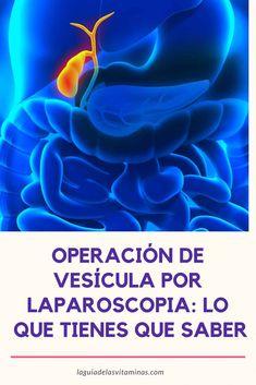 Dieta de operacion de vesicula por laparoscopia