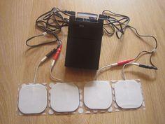 Transcutaneous electrical nerve stimulation - Wikipedia