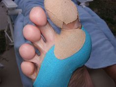 Hotspots and Blisters: Foot Care Tips for the Trail Use Bodyglide.  Available at www.itourlight.com