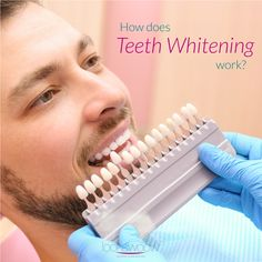 Keeping teeth white is difficult with all the coffee, wine, smoking, and fruits being consumed. Our teeth become exposed to stain-causing foods on a daily basis, which makes proper consistent maintenance important. Teeth whitening can restore the natural color of your teeth or even make them look better than before.   #Lookswoow #brightsmile #smilemakeover #teethwhitening #cosmeticdentistry Smile Makeover, Vodka Drinks, Coffee Staining, White Teeth, Cosmetic Dentistry, Teeth Whitening, Coffee Wine, Restore, Smoking