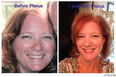 This is from a fellow   Ambassador Jodi....She struggled with RA and Fibromyalgia!!!   AMAZING!!!  When I finally took a chance with Plexus products, knowing that they weren't going to work, but thought I would try anyway - so I could tell everyone that they don't work!! Guess what?? They work!!!  I have a lot of people to keep up with!   Plexus has given me my life back! . My Rheumatoid Arthritis and my fibromyalgia are under control!!! I have lost 30lbs!!!!