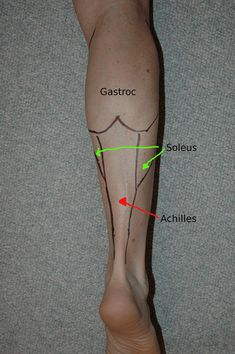 Do you have a sore achilles tendon in the morning? Learn the early warning signs of achilles tendonitis to prevent further achilles injury. Human Body Anatomy, Human Anatomy And Physiology, Muscle Anatomy, Autogenic Training, Athletic Training, Medical Anatomy, Sports Medicine, Massage Therapy, Physics