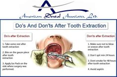 Know about don's and dont's after tooth extraction - http://www.atooth.com/cicero-dentist