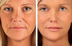 Beauty Secrets, Diy Beauty, Fashion Beauty, Beauty Hacks, Women's Fashion, Healthy Tips, Healthy Skin, Homemade Mask, Free To Use Images