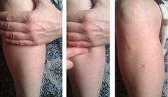 Zu San Li - Spoločný bod akupunktúry, ktoré môže zachrániť život