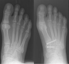 Austin Foot and Ankle Specialists treat Lisfranc Fractures of the foot. Injuries to the Lisfranc joint most commonly occur in automobile accident victims, military personnel, runners, horseback riders, football players and participants of other contact sports, or something as simple as missing a step on a staircase.