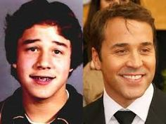 American actor, producer and Emmy and Golden Globe winner Jeremy Piven wore braces before he became famous.