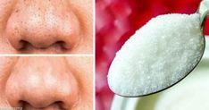 12 φυσικά προϊόντα που βοηθούν να μείνει το δέρμα για πάντα νέο