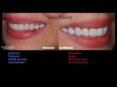 Details matter. Indirect veneers smile makeover ! #cosmeticdentistry #dentalspa by ramichayah Our Cosmetic Dentistry Page: http://www.myimagedental.com/services/cosmetic-dentistry/ Google My Business: https://plus.google.com/ImageDentalStockton/about Our Yelp Page: http://www.yelp.com/biz/image-dental-stockton-3 Our Facebook Page: https://www.facebook.com/MyImageDental Image Dental 3453 Brookside Road Suite A Stockton CA 95219 (209) 955-1500 Mon - Fri: 8am - 5pm myimagedental@gmail.com
