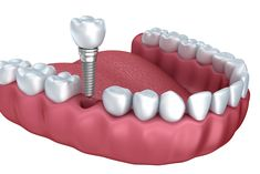 Dental implants are the most natural looking tooth replacement option. Considering the quality of life, overall cost effectiveness, and long term health, dental implants could be the very best choice for you. Contact Us Today! #dentalimplants #dentalimplantsVA #OFD