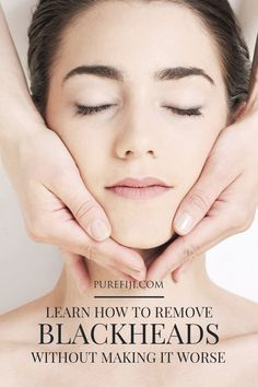 Using an exfoliant on a regular basis is one of the ways you can prevent clogging your pores. Read on to learn how to get rid of if you'. Blackheads On Cheeks, What Are Blackheads, Diy Beauty Mask, Get Rid Of Pores, Acne Skin, Acne Scars, Oily Skin, Natural Beauty Recipes