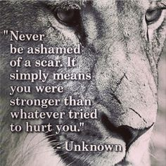 Scars are Proof Of Strength