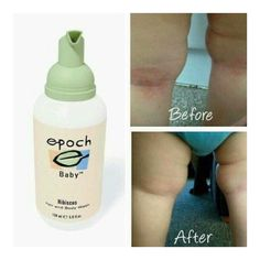 Is your baby have eczema Arash or psoriasis this can dramatically make psoriasis go away completely and makes psoriasis and rashes virtually unnoticeable My Beauty, Beauty Skin, Health And Beauty, Beauty Box, Tinted Moisturizer, Moisturiser, Galvanic Spa, Photo Makeup, Epoch