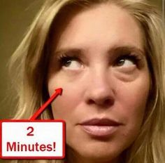 Be Instantly Ageless Before After Photo, Puffy Eyes, Rhinoplasty, Combination Skin, Skin Problems, Beauty Secrets, Skin Care, Eyebags, Amazing