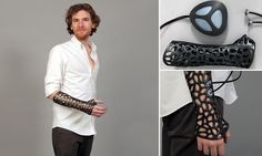 Is this the plaster cast of the future? This 3-D printed design uses ultrasound to speed up healing