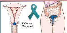 Hace más de 40 añosel cáncer de cuello de útero era una de las cuasas principales de mortalidad de la mujer. Con el desarrollo de nuevos métodos de detección (papanicoalo) y con el reconocimiento de signos de alarma los casos de cáncer cervicouterino han dinsminuido significativamente. Sin embargo esto no significa que estes completamente a salvo, muchas miles de mujeres se afectan por el cáncer cervical cada año. Reconocer los factores de riesgos y los señales de alarma puede salvar a una…