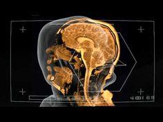 Sivu's MRI Music Video Shows Inside of Singer's Head