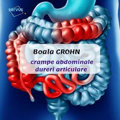 Crohns, Good To Know, Health, Medicine, Loosing Weight, Radiology, Neurology, Health Care, Salud