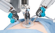 Single-Incision Surgery, Via New Robotic Systems